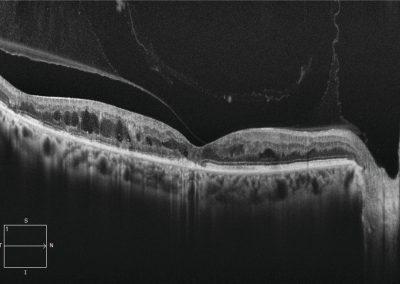 OCT zobrazení sítnice