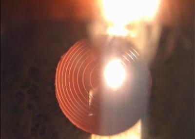 Multifokální čočka Tecnis  Symfony