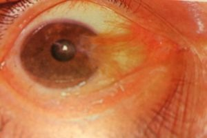 Pterygium-small-2