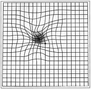 Amslerova mřížka