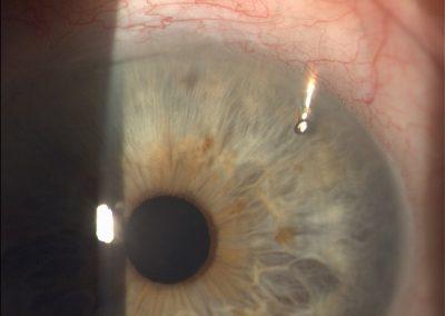 Express implantát u glaukomové operace